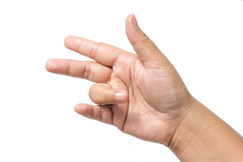 De Quervain's tenosynovitis is an inflammatory condition affecting the  tendons which move the thumb finger causing pain in the base of the thumb  with ...