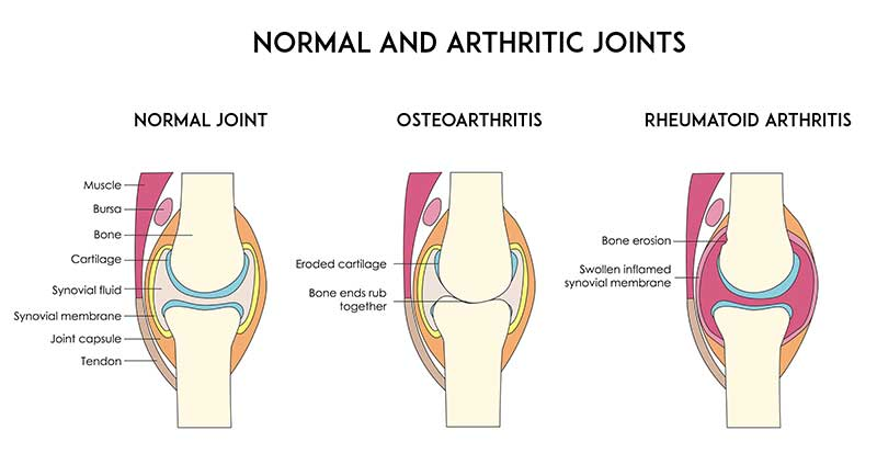 synovitis is soreness of the casing coating a joint